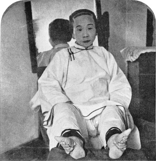 Chinese lady with bound feet