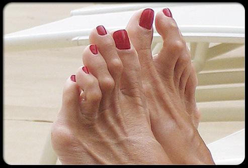 Amateur toe thumbs