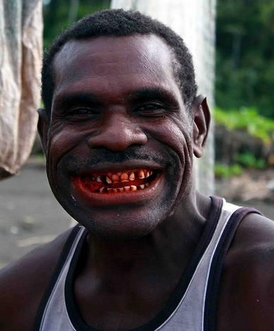 PNG betel chewer